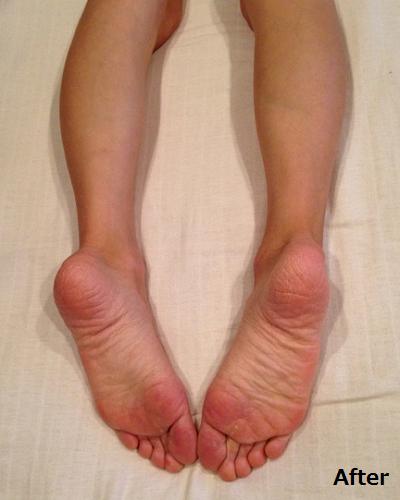 両足の長さの違いが揃っている画像(1)