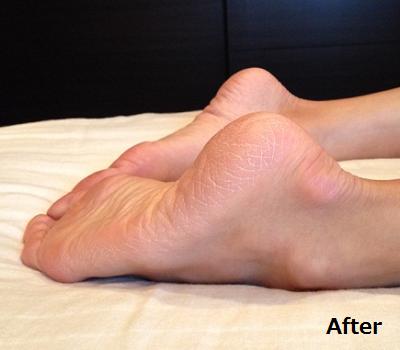 両足の長さの違いが揃っている画像(2)