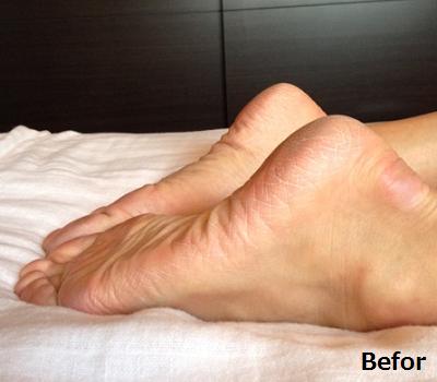 両足の長さが違っている画像(2)