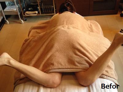 股関節の内旋範囲が左右で違っている画像