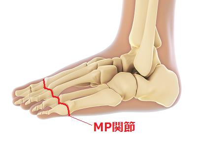 骨模型のMP関節の画像