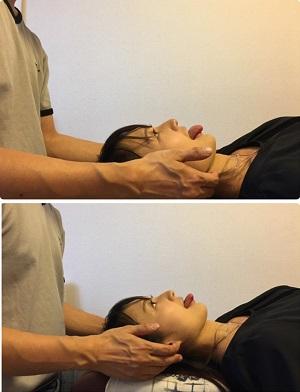 美容整体普及協会のセミナー(実技)の様子(舌骨上筋へのアプローチ ビフォーアフター)