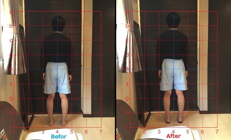 オーダーメイドインソール着用の有無での姿勢の変化の画像