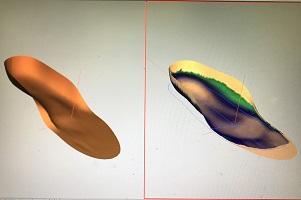 オーダーメイドインソール(CAD/CAM)のイメージ画像